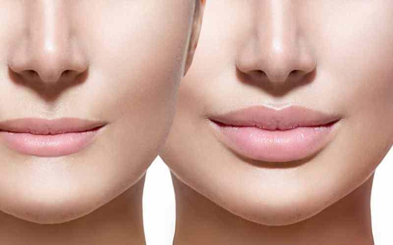 aumento-labios-natural