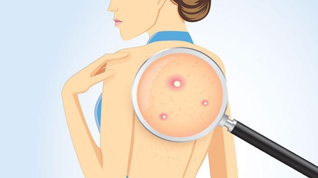 How to treat back acne at home and the causes of back acne