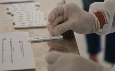 Pernambuco confirma nesta terça-feira (24) 781 novos casos e 25 mortes pela covid-19