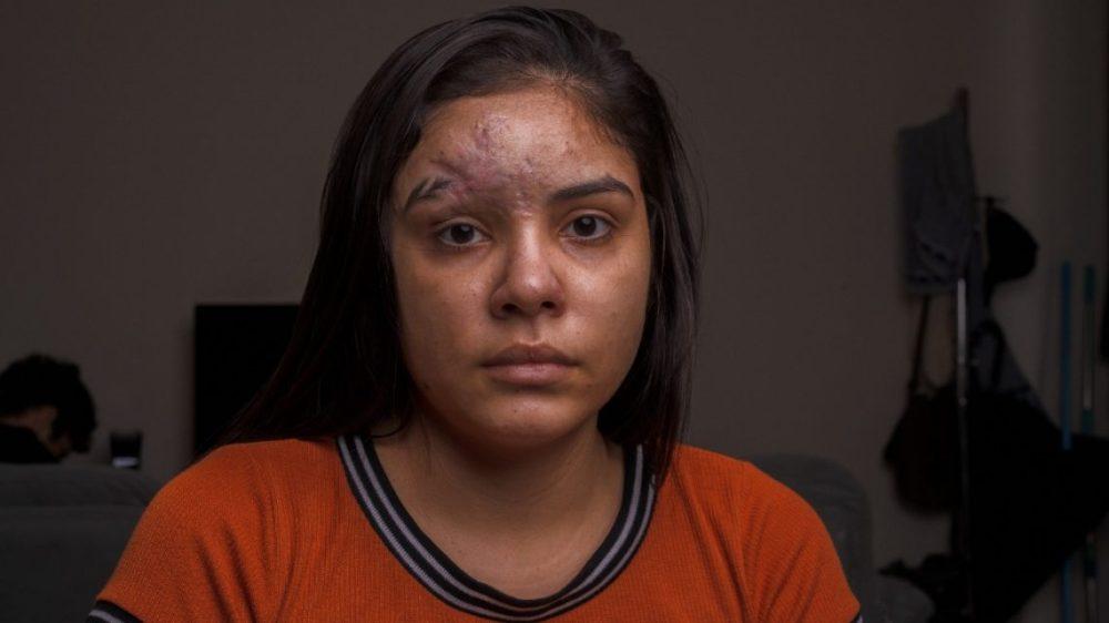 TJPE determina que empresa banque tratamento de estudante pernambucana que passou 7 meses com pedaço de vidro no nariz