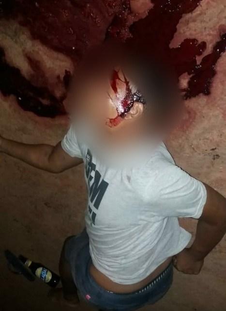 Homem de 40 anos é assassinado a tiros no povoado Urucuzal zona rural de Palmeirândia