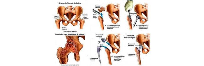 artroplastia-7