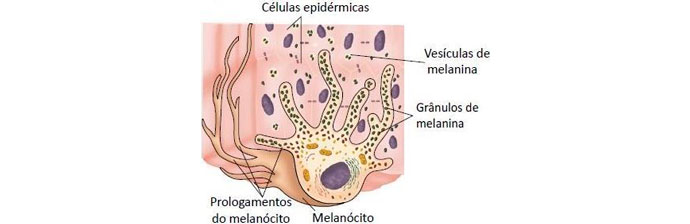 melasma-4 O Que é Melasma? Saiba Tudo sobre Esta Condição