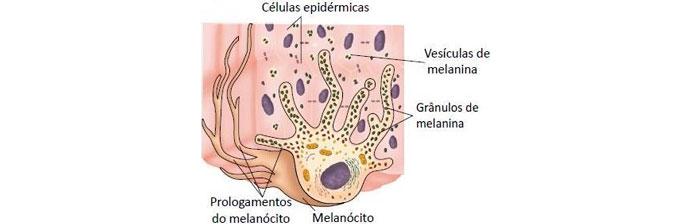 melasma-4