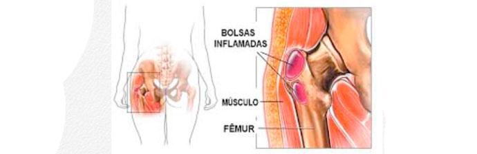 patologias-no-quadril-4
