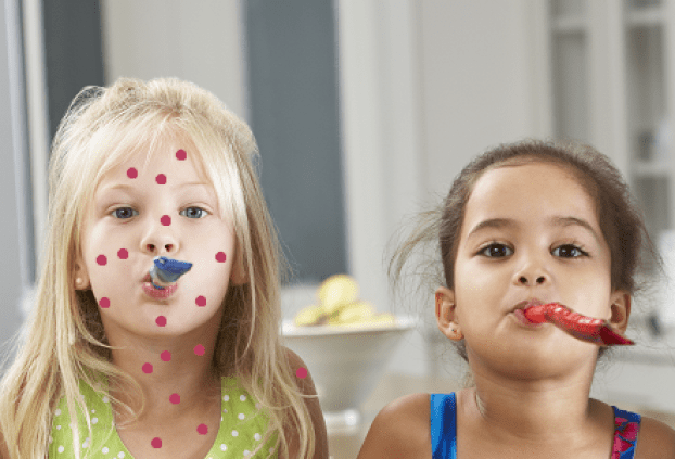 Although a vaccine is available, some people prefer their children to build up immunity to the virus by attending chicken pox parties, or 'pox parties.'