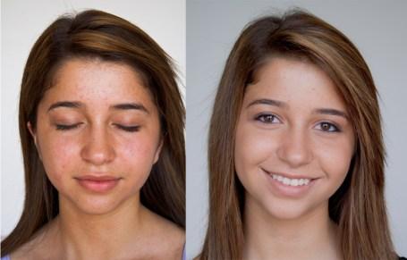 Resimler öncesi ve sonrası biyo-yağ için görüntü sonucu