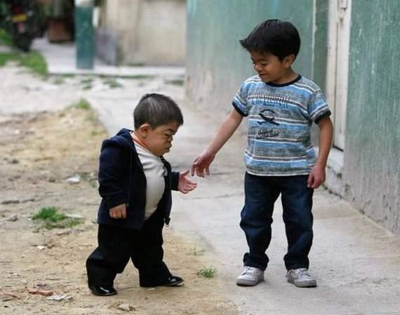 """Resultado de imagem para imagens de Edward """"Nino"""" Hernandez, da Colômbia, agora o menor homem do mundo."""