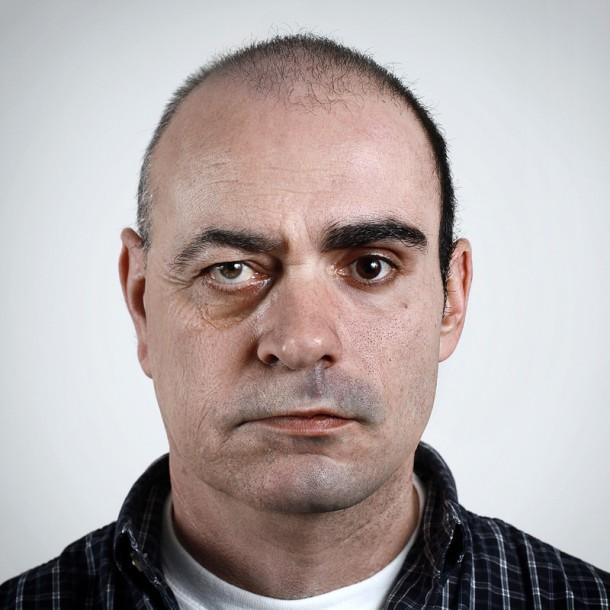 Retratos genéticos: cara de um, focinho de outro