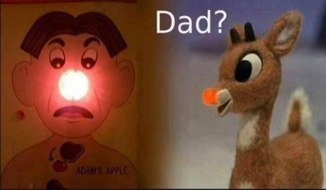 "Rudolph to Operation Game: ""Dad?"""
