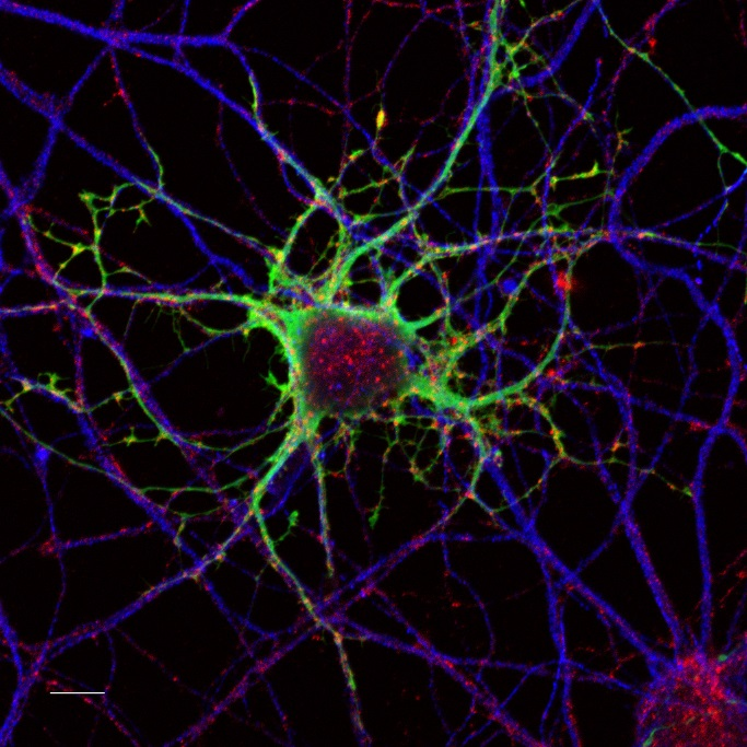 image de neurone obtenue par microscopie par fluorescence
