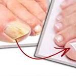 Kend be ezzel a fahéjas dologgal a gombás lábkörmöd és hamarosan megoldódhat a problémád!