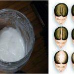 Szódabikarbónás sampon: A hajad gyorsabban nőhet tőle, mint bármi mástól!