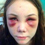 """8 órán keresztül kínozták, verték az életéért könyörgő 18 éves lányt a """"barátai"""""""