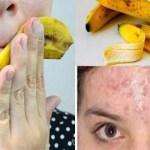 ÁLLJ! NE DOBD EL A BANÁNHÉJAT! 10 fantasztikus gyógymód amihez szükséged lehet rá..