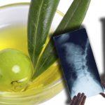 NEM TUDTUK, DE AZ OLÍVA OLAJ TÉNYLEG SEGÍTHET – olíva olaj az élet elixírje