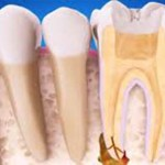 Ha a fogorvos gyökértömést javasol…