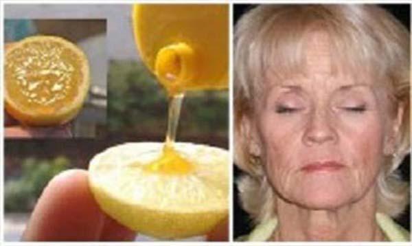 Így használd a mézet és a citromot az arcodon, hogy hamarosan akár 10 évet is letagadhass!