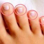 Lábujjaid elmondhatják, mi a bajod: más-más betegséget jelezhet a különböző lábujjak fájdalma