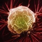 Ezek az élelmiszerek kedvező hatással vannak a rákos megbetegedésekre és akár még visszahúzódásra is kényszeríthetik a daganatokat