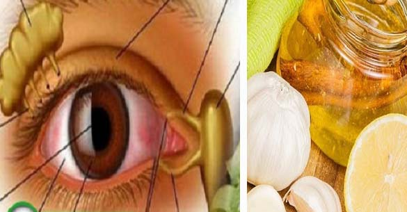 Ez a végső megoldás a jobb látás érdekében! A látásom 80% -át helyreállította! Próbáld ki ezt a receptet, mielőtt a szemészek töröltetnék az internetről!