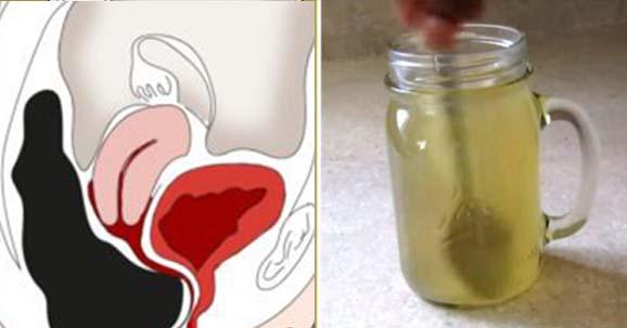 Ez az otthoni körülmények között is elkészíthető ital kitisztítja a beleket, így szabadítva meg a szervezetet a méreganyagoktól.