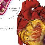 7 erős és hatékony gyógynövény a szívelégtelenségben szenvedőknek