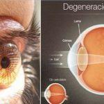 Talán eldobhatja a szemüvegét. Ez az összetevő akár 97%-al is visszaállíthatja a látását