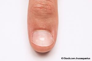 white-spot-nails1
