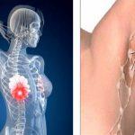 A hónaljad méregtelenítésével elkerülhető a mellrák kialakulása – Megmutatjuk, hogyan