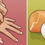 Így használhatod a hagymát természetes orvosságként