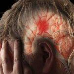 A stroke egyik jele, amiről még biztos nem hallottál