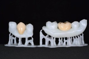 3D Printing in Healthcare Emerging Applications | Novel Organ Printing
