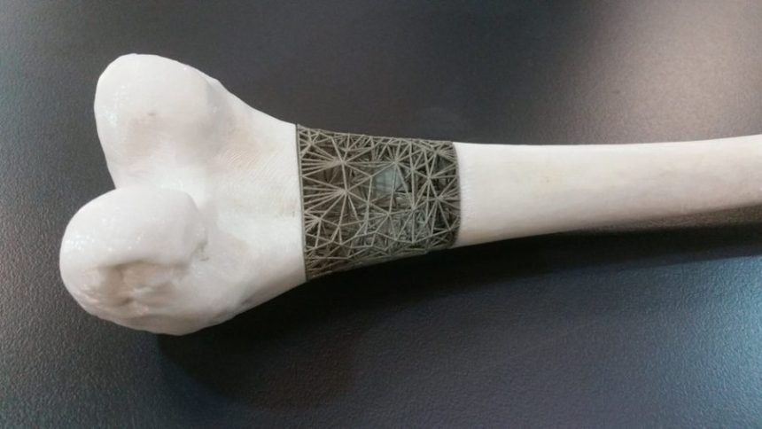 3d-printed-bones-tissue-engineering-bone-scuffolds