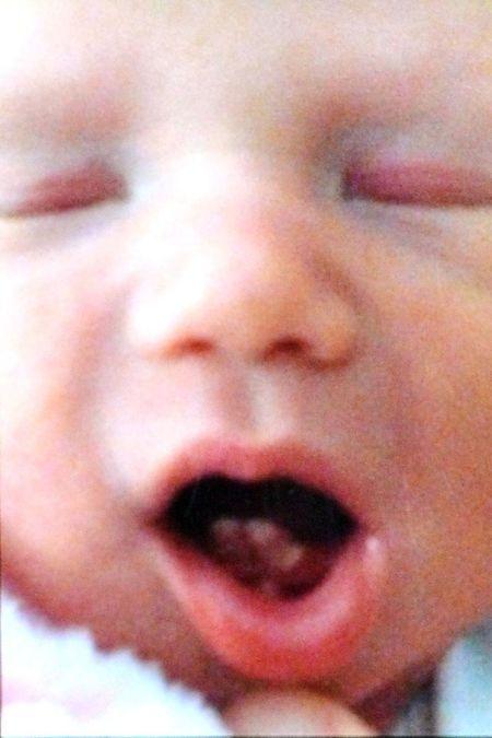蘿絲一出生就長了兩顆門牙
