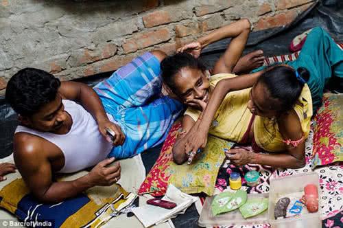 印度連體姐妹花與一見鍾情的男子