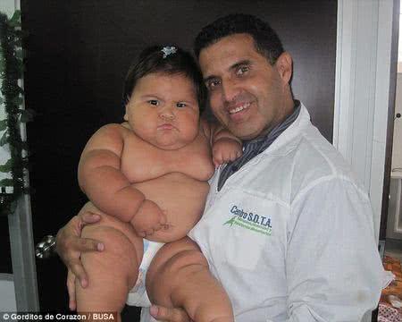 哥倫比亞胖女嬰