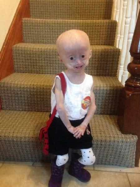 愛爾蘭5歲女童露西‧帕克一副老臉
