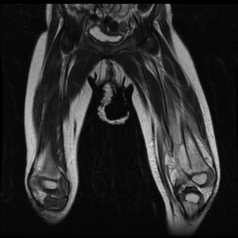 distal-femoral-osteomyelitis-and-sub-periosteal-abscess