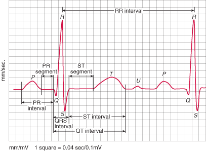 waves-of-the-ecg