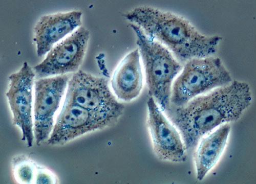 Resultado de imagen de células HeLa