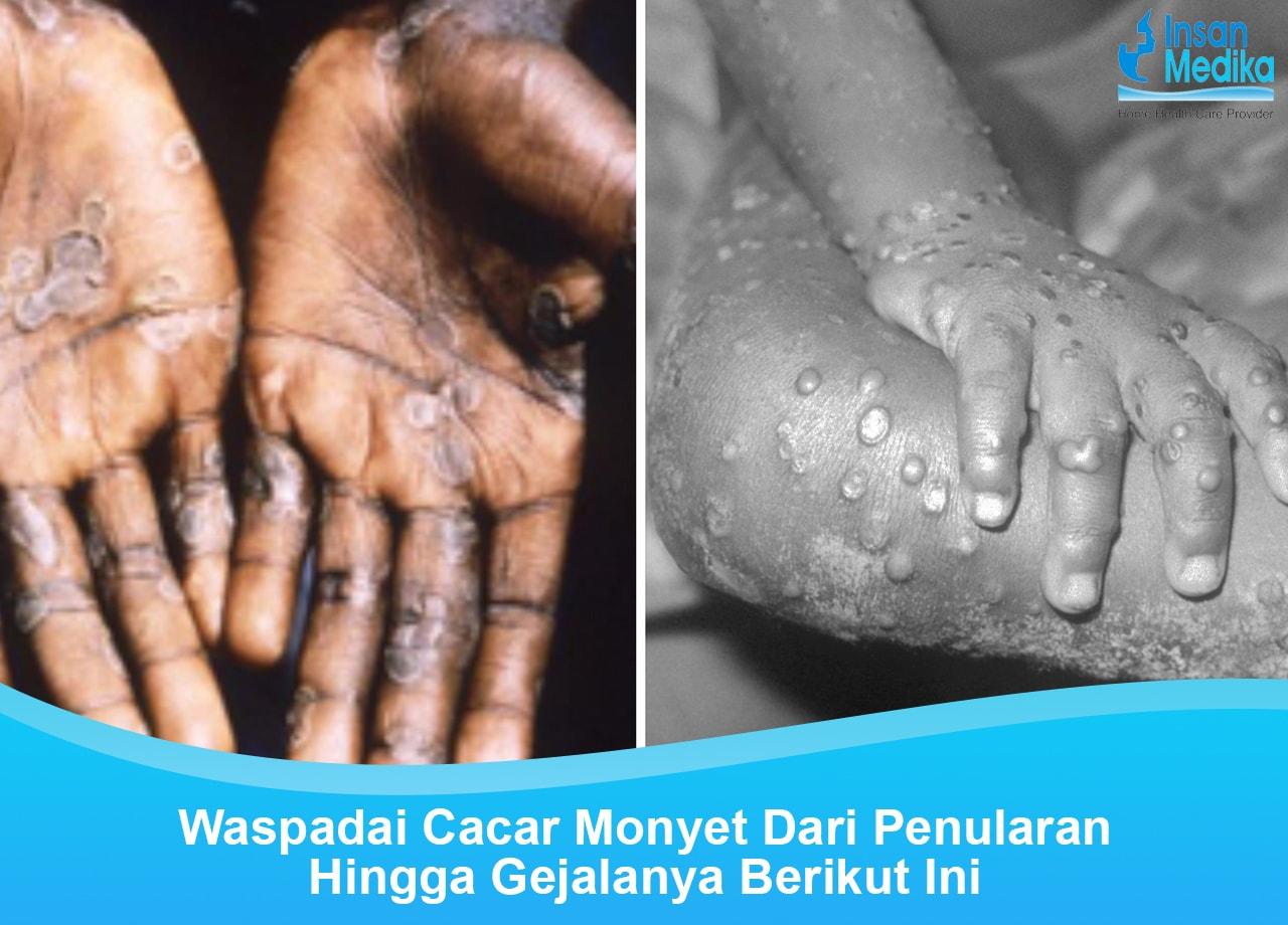 Penyebab dan gejala Cacar Monyet (monkeypox)