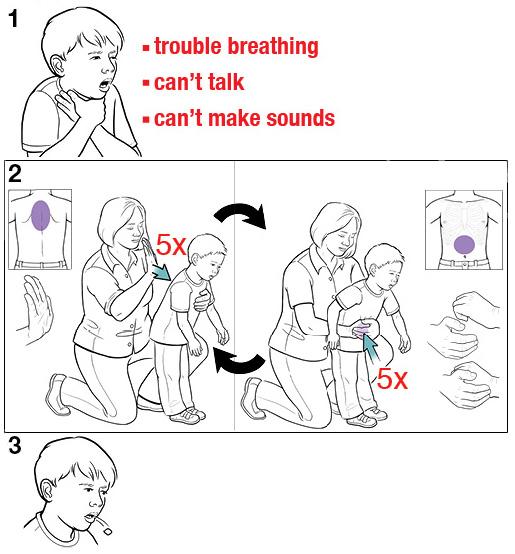 Cara mengeluarkan benda asing yang ditelan anak