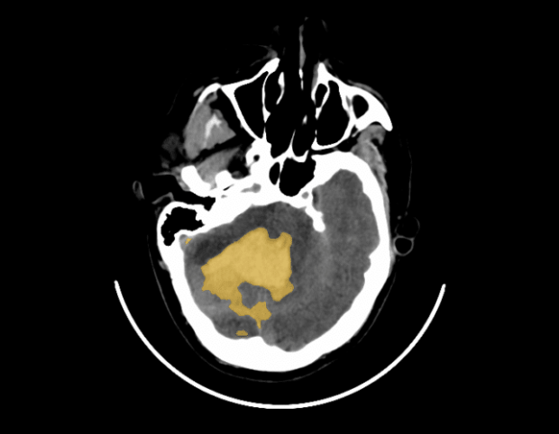 Qure.ai's automated CT scan identified this hemorrhage in the functional tissue of the brain.