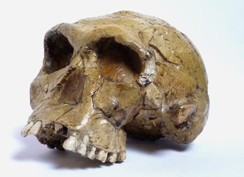 Areas Human Skull