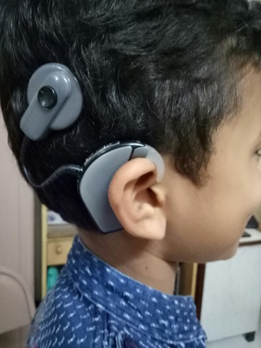divyesh's cochlear implant