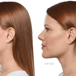 Experience the best benefits of kybella treatment