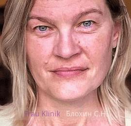 «На 10 лет моложе!» - уникальный реалити-проект RENTV и Frau Klinik 10