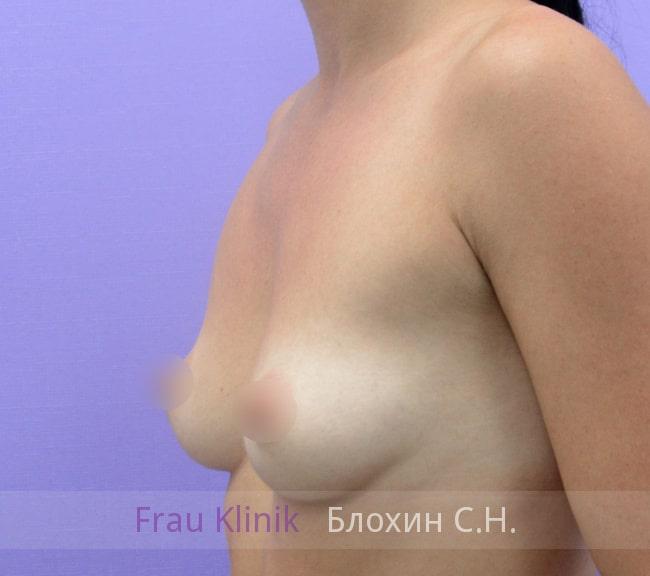 Увеличение груди имплантатами 20