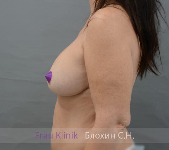 Повторная маммопластика 44